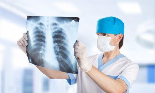 При подозрении на пневмонию обязательно делают рентген грудной клетки, без него диагноз считается недостоверным
