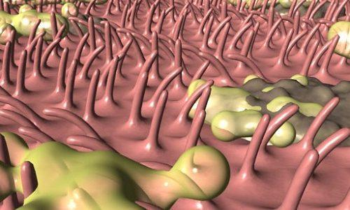При хроническом воспалении бронхов наблюдаются изменения их эпителия. Постепенно увеличивается количество слизи