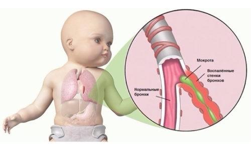 Бронхит у детей - это заболевание дыхательной системы, при котором воспалительный процесс поражает слизистую оболочку бронхов