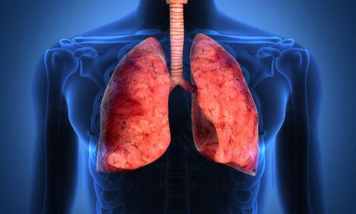 Бронхит — это острое воспаление бронхов, которое может быть вызвано пневмонией