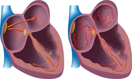 При передозировке нарушается ритм сердечных сокращений