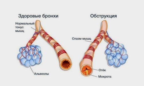 Обструктивная форма болезни влечет за собой отек бронхов, патоморфологические изменения в дистальных отделах