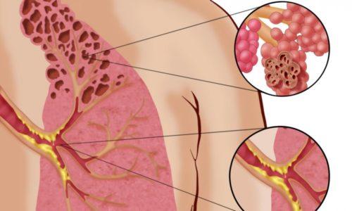 При хроническом бронхите в периоды ремиссии пациенты сталкиваются с сильными приступами кашля