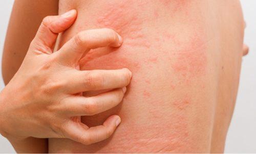 В редких случаях может возникнуть анафилактическая реакция, высыпания, крапивница, как следствие непереносимости препарата