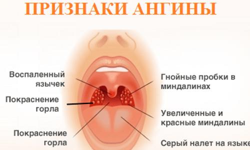 Препарат назначают для лечения ангины