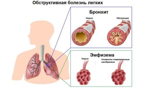 Обструктивный бронхит - это воспаление бронхов (трубчатых ветвей трахеи, по которым в легкие поступает воздух).