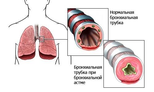На фоне вирусного или аллергического бронхита может возникнуть астматический синдром