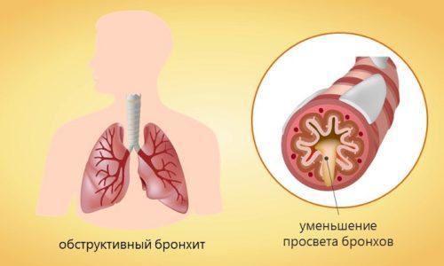 Хронический обструктивный бронхит сопровождается одышкой и влажным кашлем и является патологическим заболеванием в процессе которого страдают бронхи и легкие