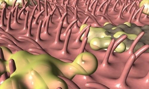Воспаление при деструктивном бронхите влияет на реснички эпителия, они погибают, а их замещает соединительная ткань