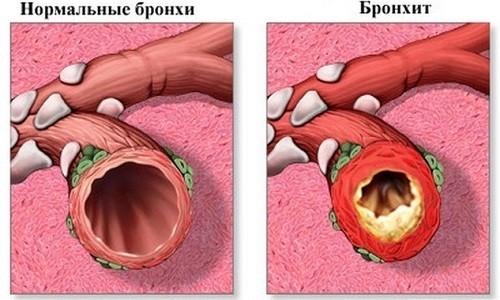 Высокая эффективность Левофлоксацина отмечается при лечении бронхита