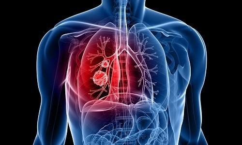 Одним из наиболее часто встречаемых заболеваний дыхательной системы является бронхит
