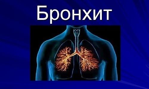 Получить ответ на вопрос, вирусный или бактериальный бронхит протекает у пациента, помогает сравнение клинических и диагностических признаков заболеваний