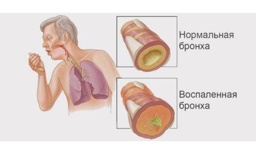 Необструктивный бронхит - заболевание дыхательной системы, сопровождающееся воспалением слизистой оболочки воздухоносных путей