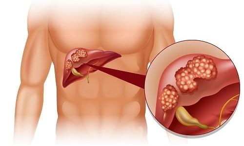Лекарственное растение противопоказано при циррозе