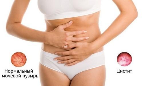 Выведение почками в неизменном виде делает препарат подходящим вариантом для лечения цистита