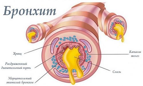 При хроническом бронхите у человека затрудняется дыхание, вследствие активной выработки слизи бронхиальными железами
