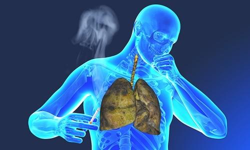 Причиной хронического бронхита у взрослых часто становится курение