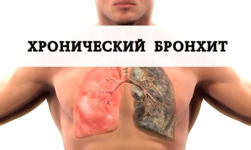 Хронический бронхит - застарелое воспаление нижних дыхательных путей (бронхов)