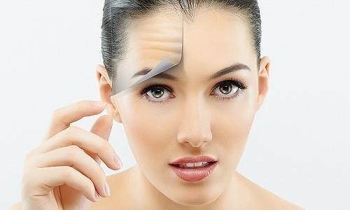 В косметологии Гидрокортизон применяют для разглаживания морщин благодаря задержке жидкости в тканях