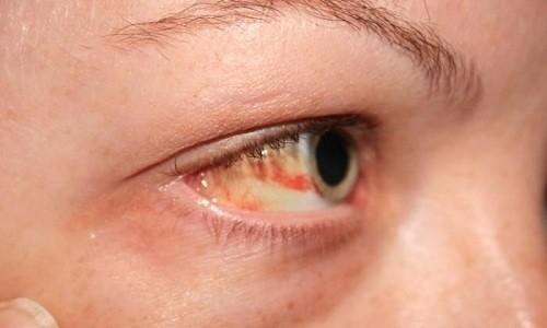 Не используют препарат при кровоизлиянии в стекловидное тело глаза