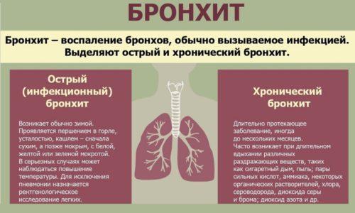 В зависимости от патогенеза заболевание бывает первичным и вторичным. По характеру воспаления он бывает катаральным или гнойным. По форме протекания - острый и хронический