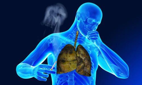 Главным признаком заболевания является кашель