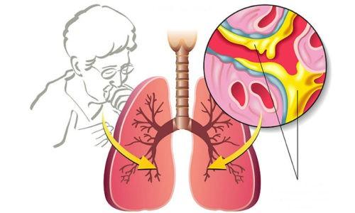 АЦЦ воздействует на реологические свойства мокроты , делает бронхиальный секрет менее вязким и облегчает его выведение из дыхательных путей