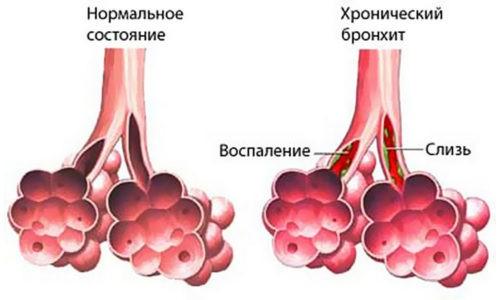 Бронхитом называют заболевание, при котором происходит поражение нижних дыхательных путей различной патогенной флорой или аллергенами