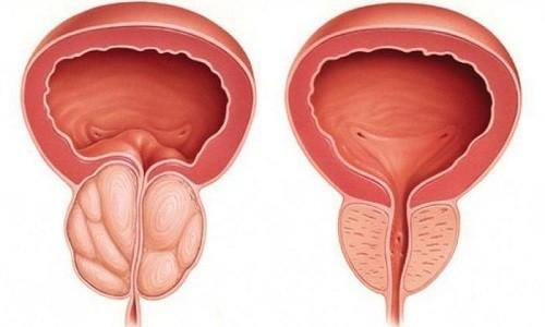 Лонгидаза помогает при хроническом простатите