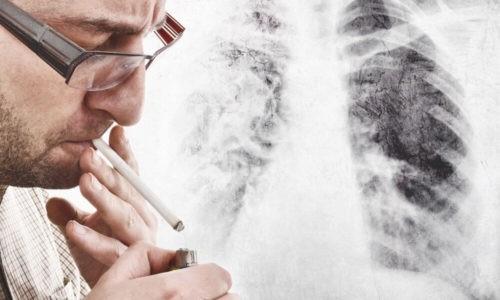 Первичная опухоль легких развивается у курильщиков старше 40 лет