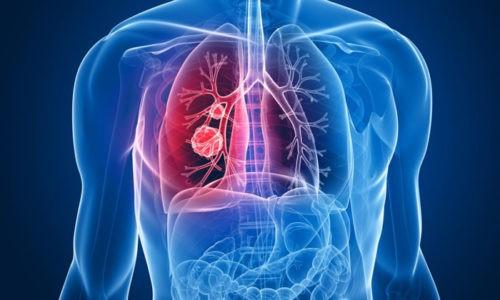В группу диффузных заболеваний легких входят онкологические процессы