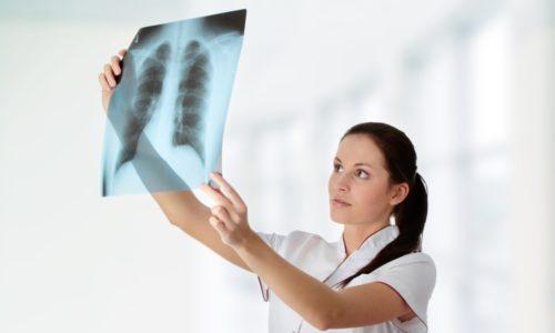 Рентгенография позволяет определить расширение границ легких при астме, при бронхите появляются признаки воспаления