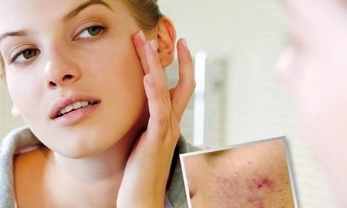 При лечении кожных болезней мазевым средством смазывают проблемный участок и слегка втирают