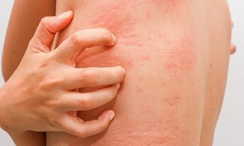 В редких случаях при приеме Кларитромицина возможно развитие аллергических реакций
