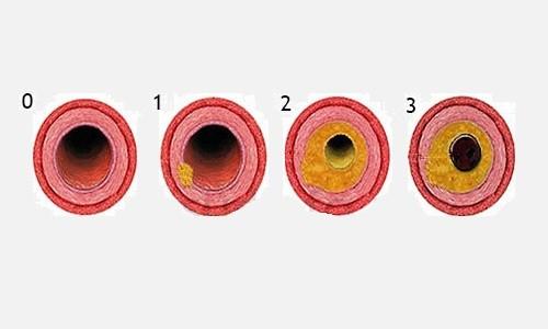 По интенсивности эндобронхит подразделяется на первую, вторую и третью степени