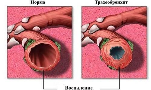 Диагноз трахеобронхит у детей ставится в том случае, когда воспалительный процесс одновременно поражает трахею и бронхи